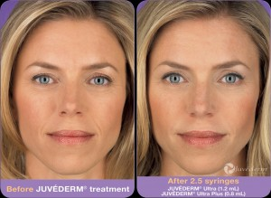 juvederm_before_after